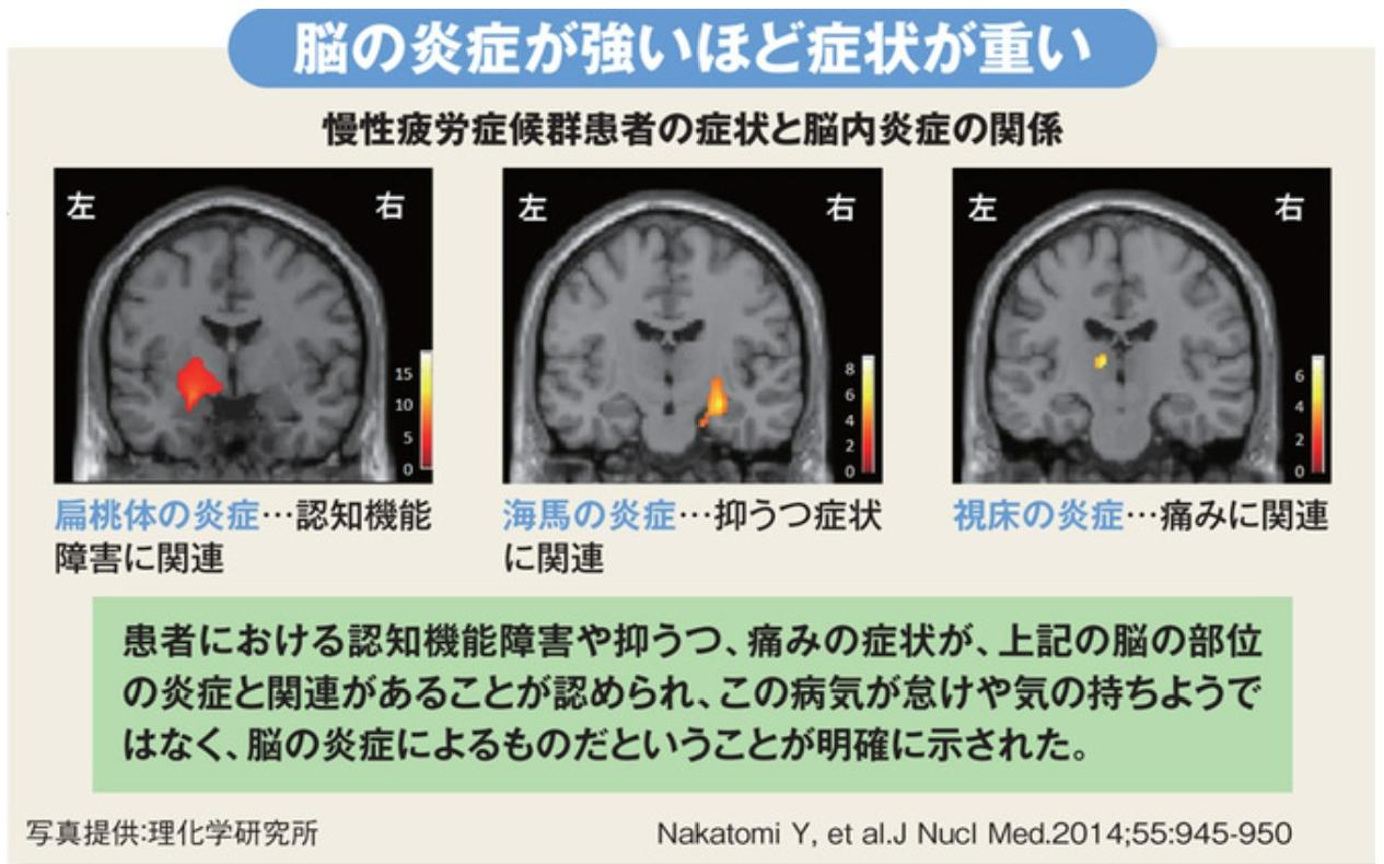 脳内炎症と慢性疲労症候群の関係