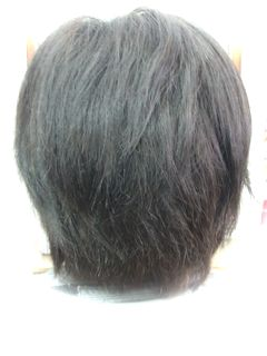 U様before