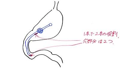 GJチューブ胃の中のイメージ1120 - コピー