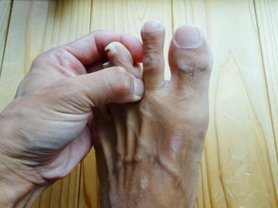 福島県郡山市・大竹茂足もみ整体院_鼻やのどの痛み、風邪に効くのはここ!足指の間をつまむと、顔エリアにあるリンパの働きが活性化