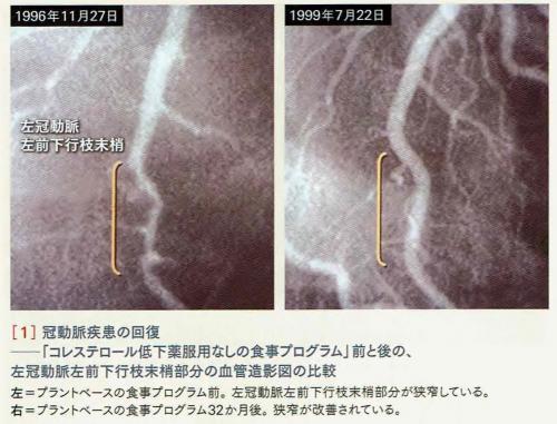 冠動脈疾患の回復_convert_20170928172112