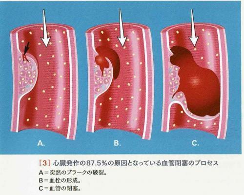 血管閉塞のプロセス_convert_20170928173242