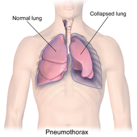 200px-Blausen_0742_Pneumothorax.png