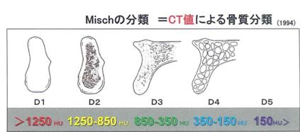 Misch分類