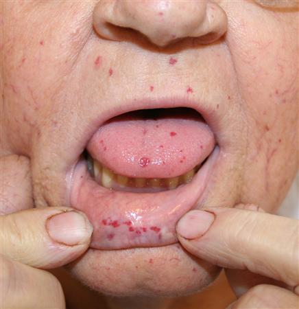 hereditary_hemorrhagic_telangiectasia_2_080517.jpg