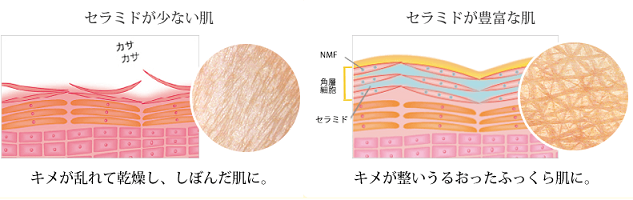 米肌 セラミド