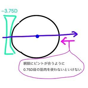 過矯正 (3)