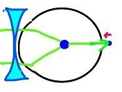 近視(5)
