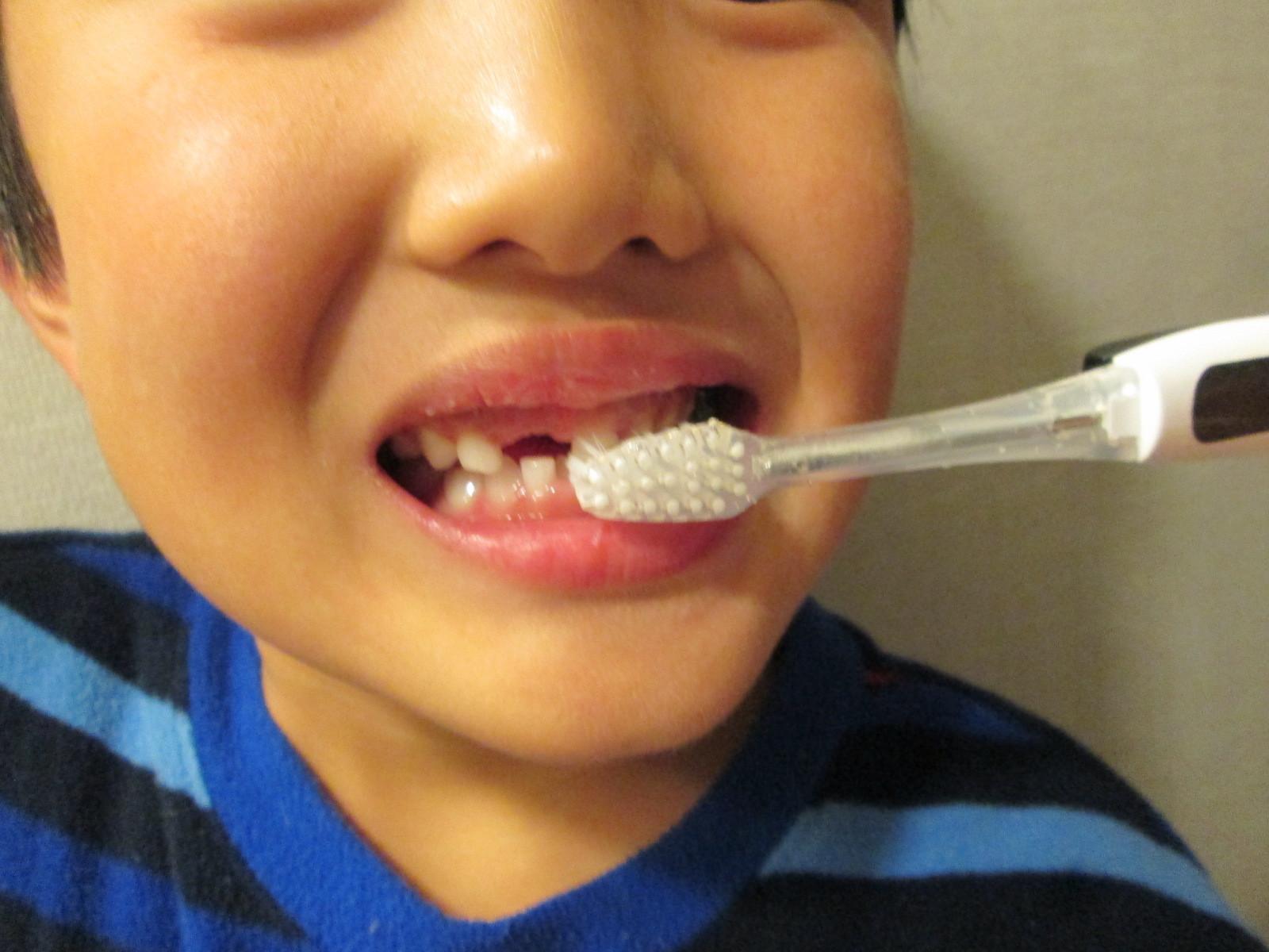 IMG_4113子供歯 (21)