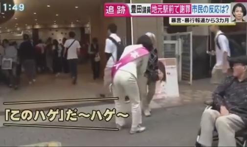 豊田真由子 ハゲ 秘書 暴行 週刊新潮 火病 禿