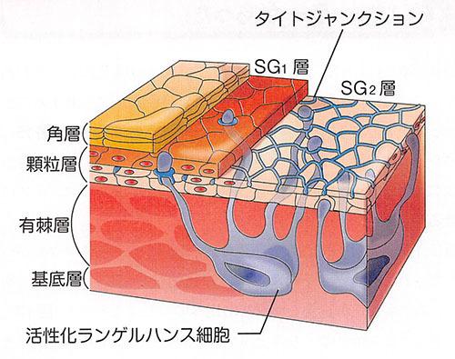 ヴォイニッチの科学書 第680回 表皮水疱症の決定的治療法