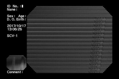 20171203002002d45.jpg