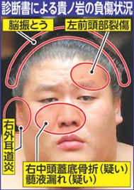 ⑤藤田憲子が妖怪でこっぱちオバケのようになっていた!