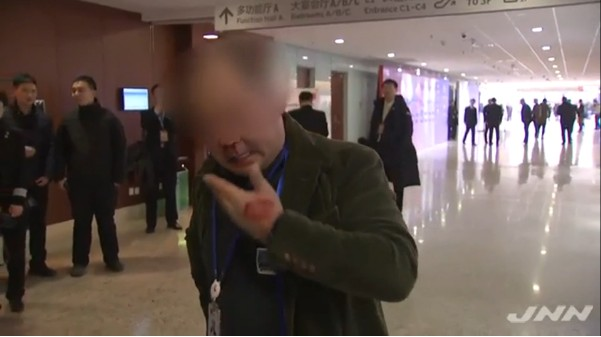 ⑧中国で強行取材ウンコ韓国カメラマンがボコボコに殴られる!