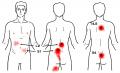 背部多裂筋TP