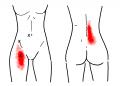 腸腰筋TP