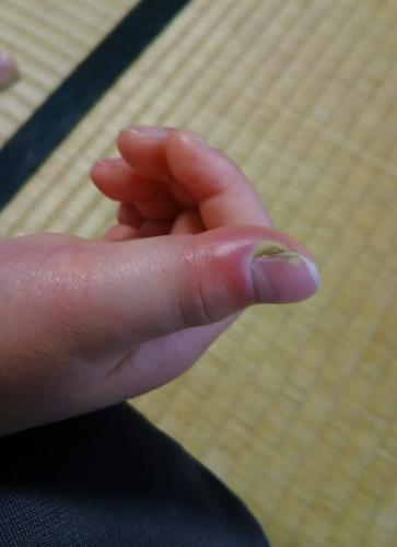 あかり指の怪我