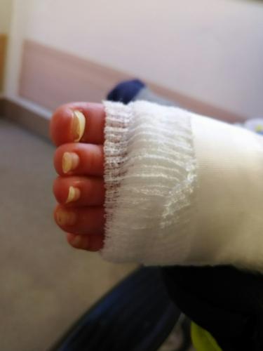 足の爪の状態