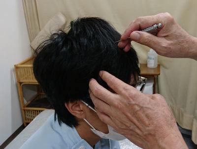 頭皮鍼検査
