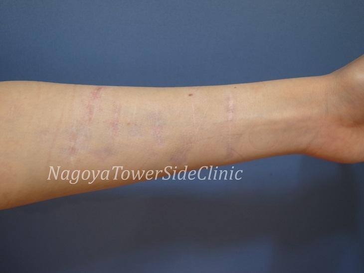 蔵地様 左前腕傷跡28治療中29