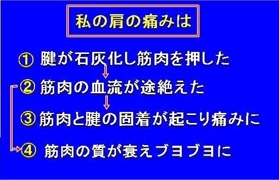 005aIMG_6593.jpg