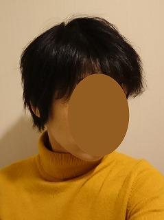 1年後髪の毛前